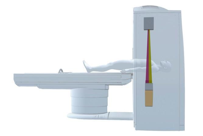 シーメンス・ジャパン/ルーチンデュアルエナジー検査を可能にする新技術の搭載を開始