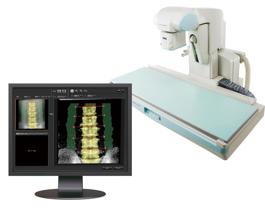島津製作所/X線TVシステム用骨密度測定アプリケーション