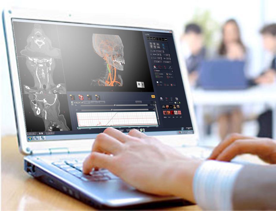 ザイオソフト/3D医用画像処理ソフトウェア