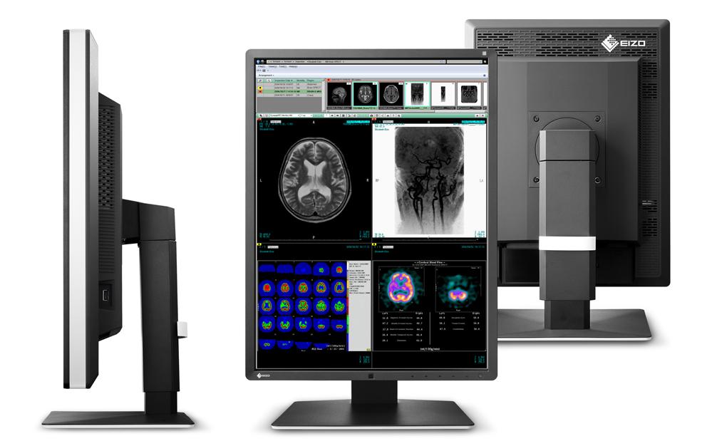 EIZO/医用画像表示カラーモニター