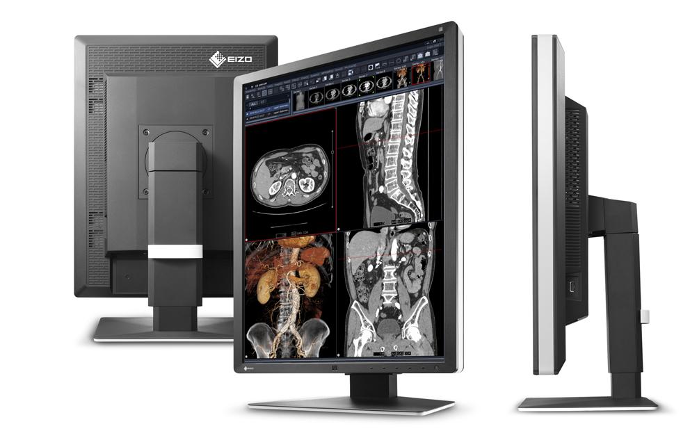 EIZO/医用画像表示モニター