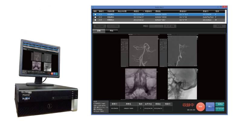 フォトロン メディカル イメージング/透視像録画システム