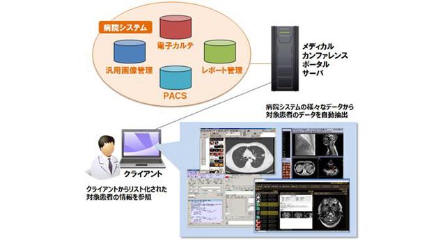 キヤノンITSメディカル/医療カンファレンス支援システムを京都大学病院と共同開発