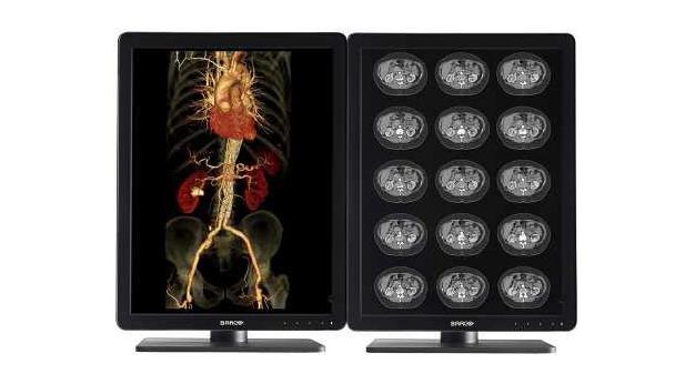 バルコ/医用画像表示用ディスプレイ