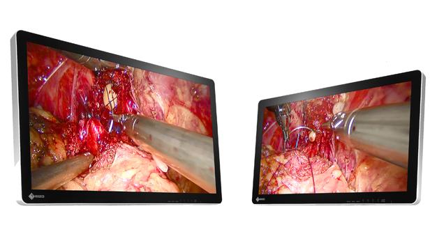EIZO/手術用3Dモニター