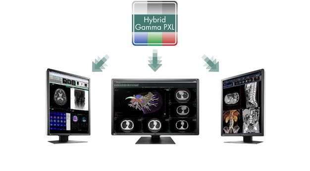EIZO/医用モニターのハイブリッド表示機能搭載モデルを拡充