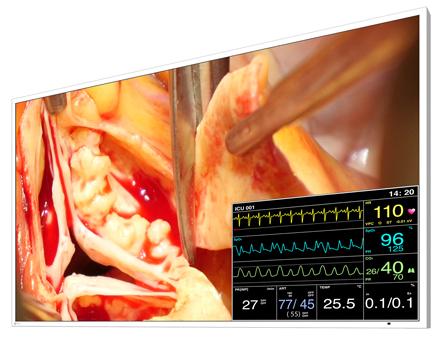 EIZO/手術室向け画像表示モニター