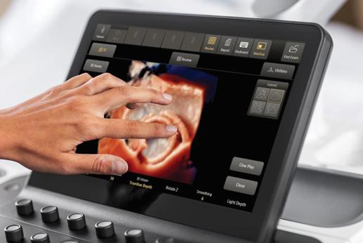 フィリップス・ジャパン/超音波診断装置
