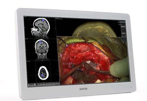 バルコ/外科画像表示用ディスプレイ