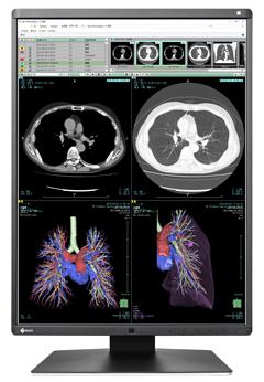 EIZO/医用画像の読影効率向上を追求した、3メガピクセル医用カラーモニターを発売
