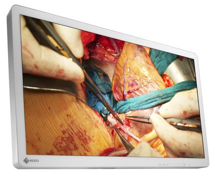 EIZO/4K高解像度と高輝度表示を両立させた手術用モニターを発売