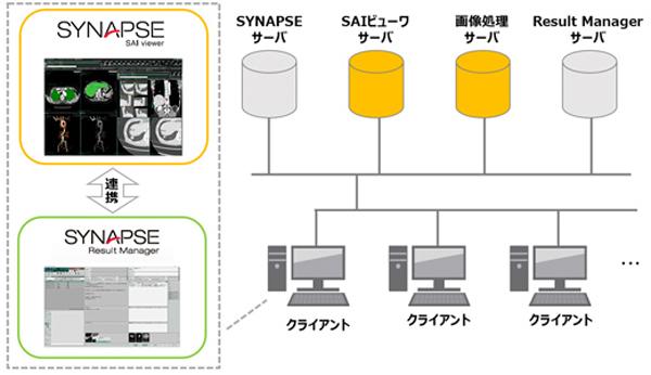 富士フイルム/「SYNAPSE SAI viewer(シナプス サイ ビューワ)」新開発