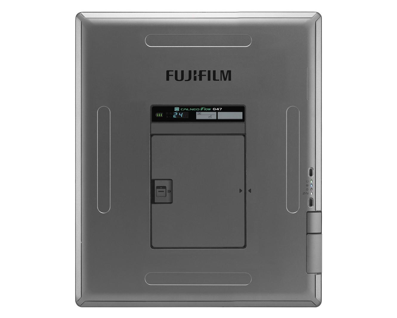 富士フイルム/X線画像診断装置「FUJIFILM DR CALNEO Flow」新発売