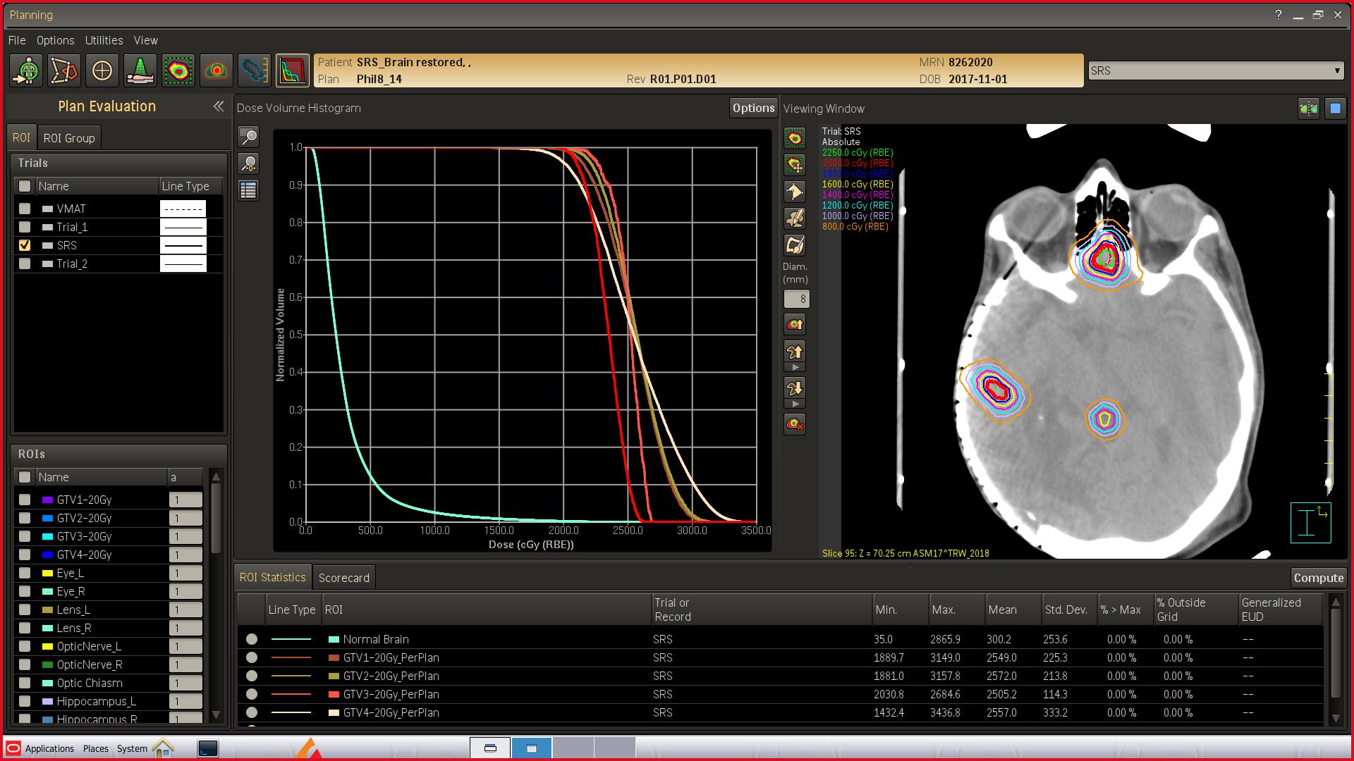 フィリップス/放射線治療計画装置「Pinnacle」の最新バージョン「Pinnacle Evolution(ピナクル・エボリューション)」を発売